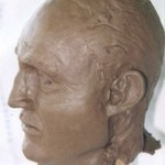 Reconstruction of victim