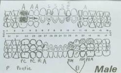 Dentals